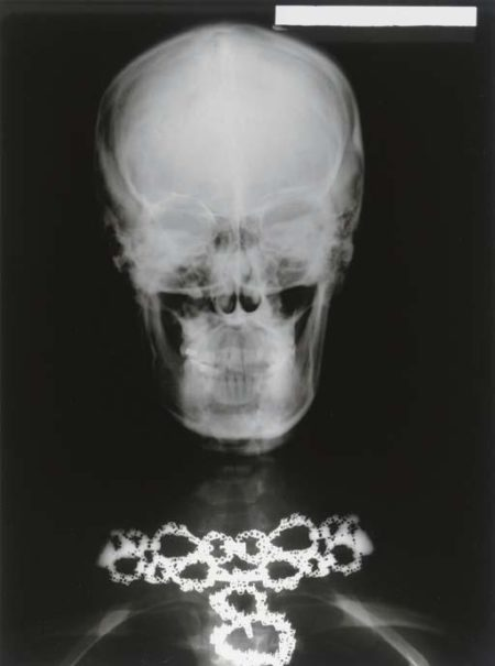 X-ray Of Woman's Skull With Van Cleef And Arpels Necklace (1979)-1979