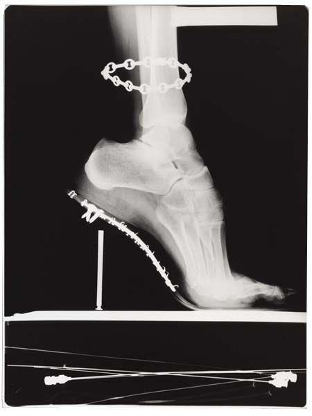 X - Ray with Chain, Paris-1994