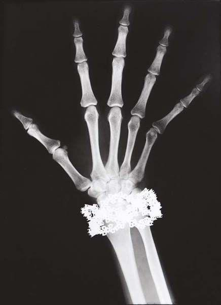 Helmut Newton-Van Cleef & Arpels Diamond Bracelet X-Ray, Paris-1979