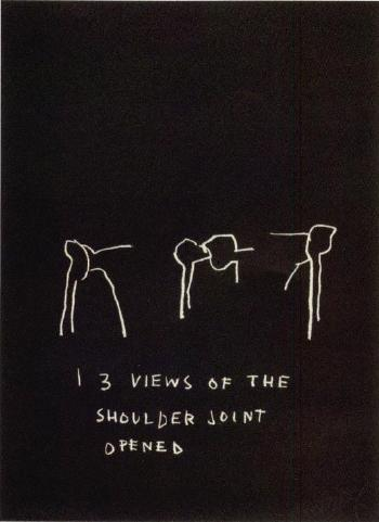 Jean-Michel Basquiat-3 Views of the Shoulder Joint Opened-