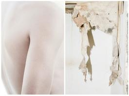 Skin I & II