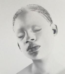 Untitled (albino girl)