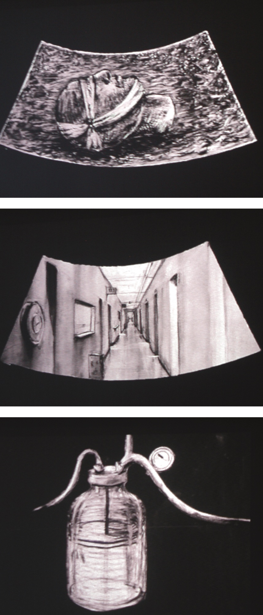 William Kentridge-Ulisse: Echo- Scan Slide Bottle [3 Films]-1998