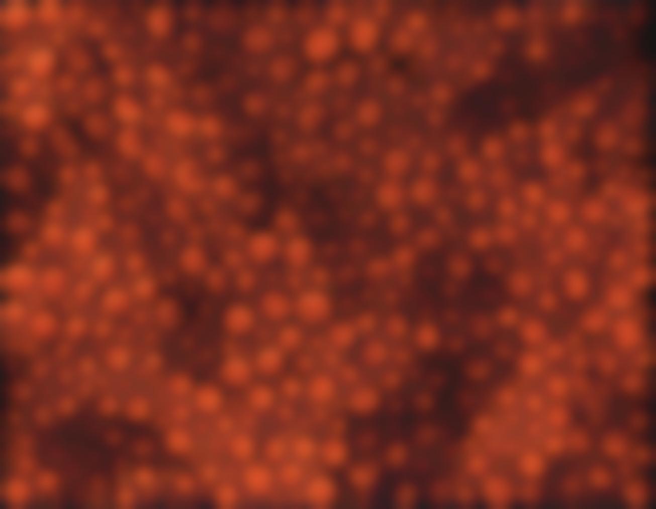 Yayoi Kusama-Dots-Obsession (Towe)-2005