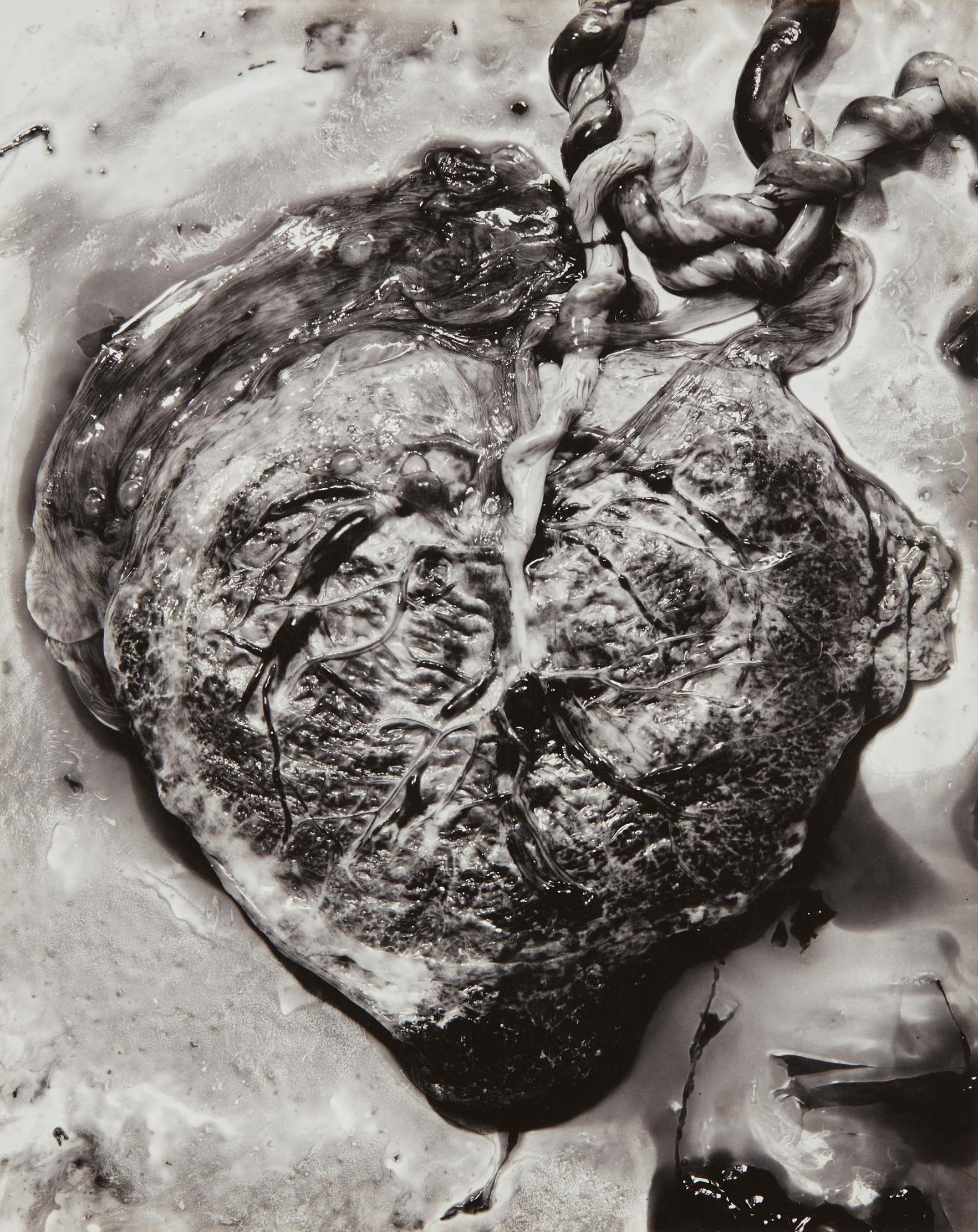 Frederick Sommer-Placenta-1940