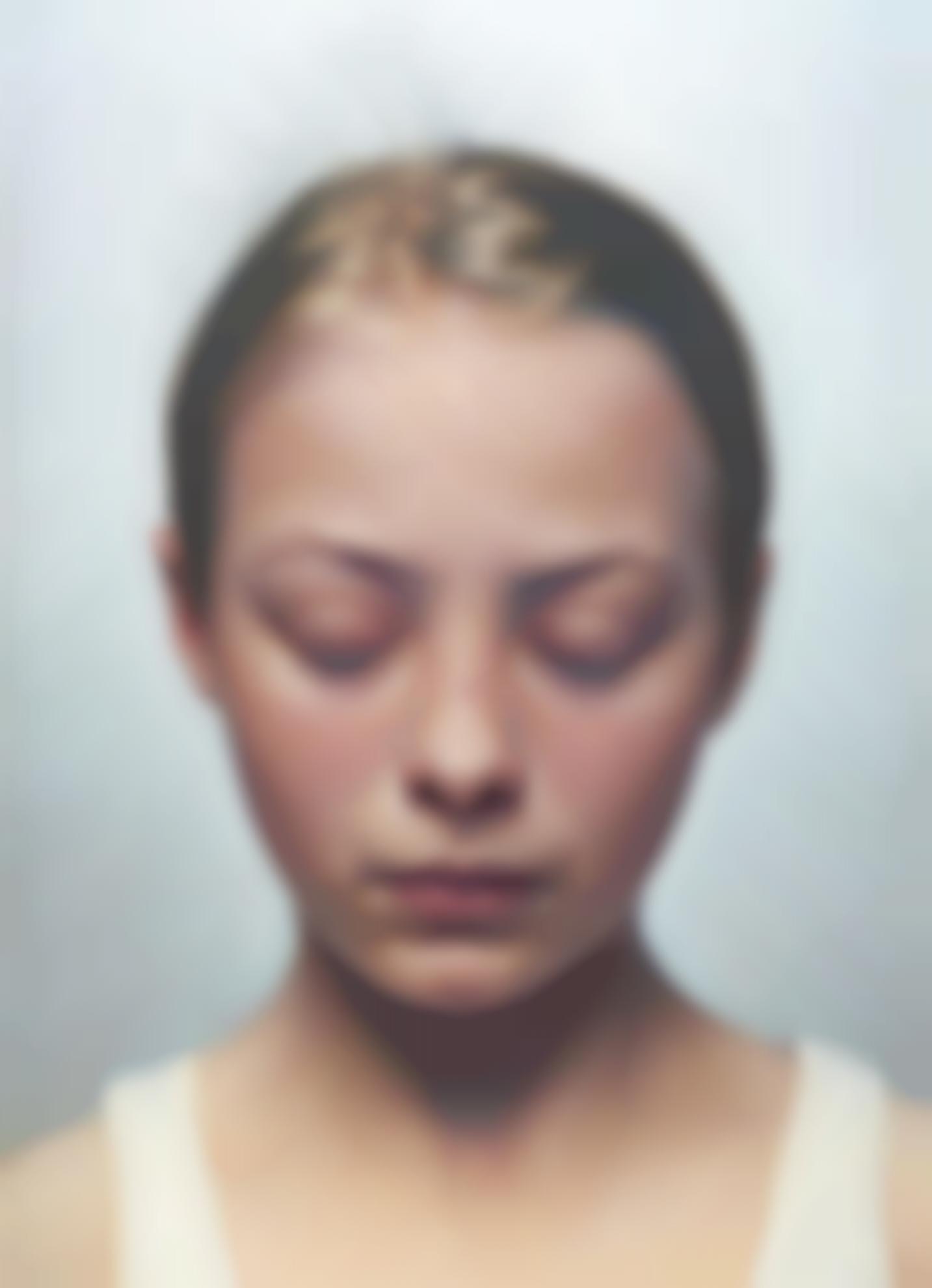 Gottfried Helnwein-Kindskopf (Head Of A Child) III-2001