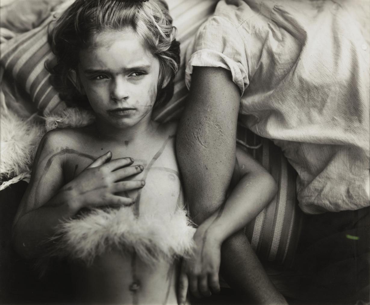 Sally Mann-Jessie Bites-1985