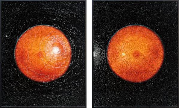 Mikhael Subotzky-Self-Portrait (With The Help Of Optometrist) R And L From Retinal Shift-2012