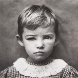 Sally Mann-Damaged Child-1984