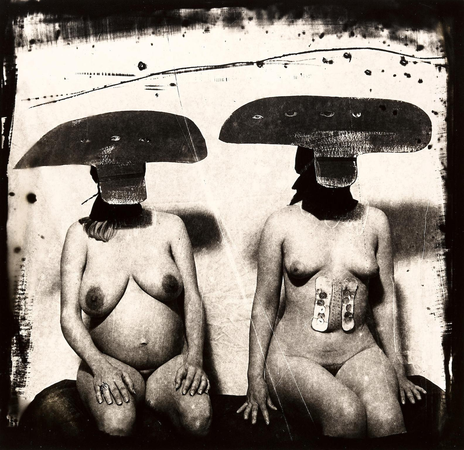 Joel-Peter Witkin-I.D. Photograph From Purgatory: Two Women With Stomach Irritations, New Mexico-1982