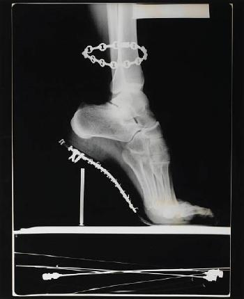 Helmut Newton-X-Ray of High Heeled Shoe and Cartier Bracelet, Paris-1994