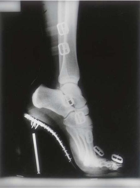 Helmut Newton-X-ray High Heeled Shoe by Karl Lagerfeld, Monte Carlo-1995