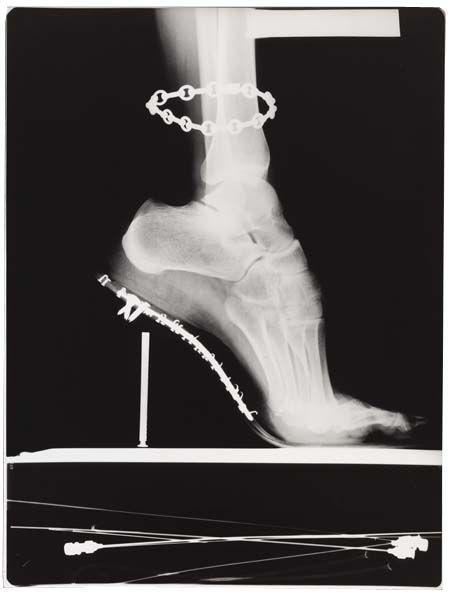 Helmut Newton-X - Ray with Chain, Paris-1994