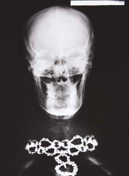 Helmut Newton-Van Cleef & Arpels Diamond Nacklace X-Ray, Paris-1979