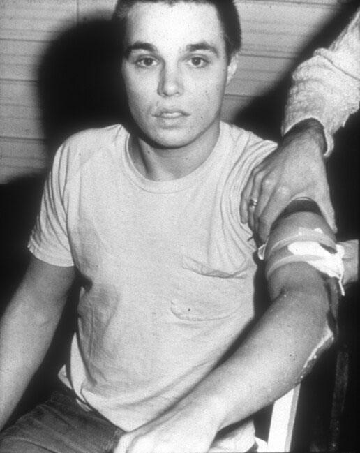 Chris Burden after Shoot, 1971