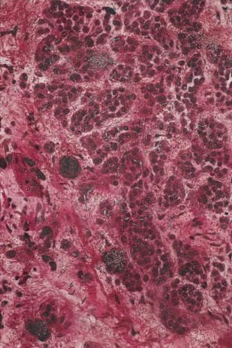 Damien Hirst-M220/140 Skin Mole, LM_SPL.jpg-2007