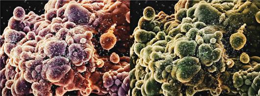 Damien Hirst-Second Series Biopsy: M865/303, M865/304-2008
