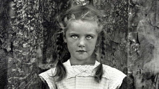 Frederick Sommer - Livia (detail), 1939-1962 Photographs