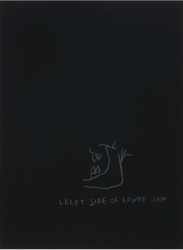 Jean-Michel Basquiat-Left Side of Lower Jaw, from Anatomy-1982