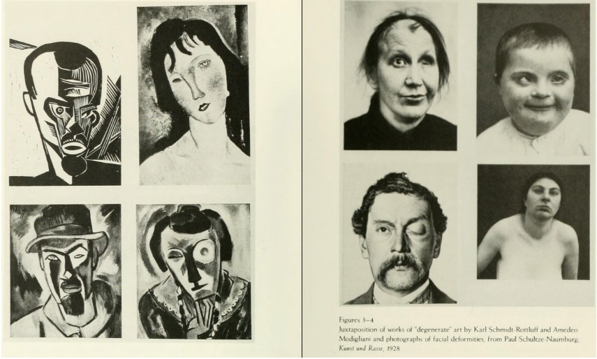 A Juxtaposition of art showing facial deformities by Karl and Amedo
