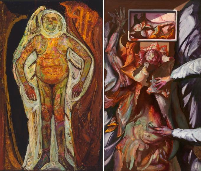 Left Hyman Bloom – Female Corpse Right Hyman Bloom – The Anatomist