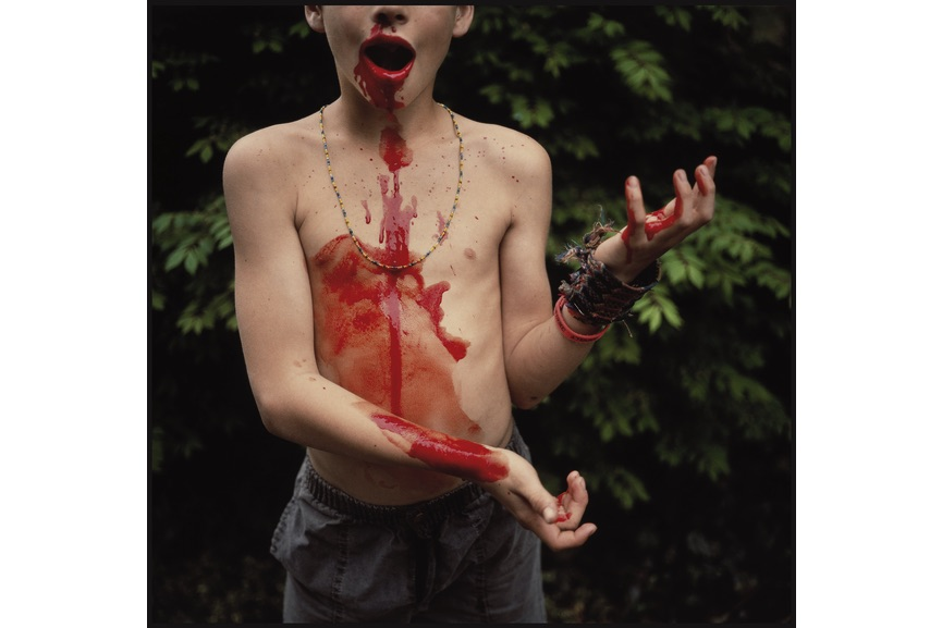 Bloody Nose, 1991, Mann's child